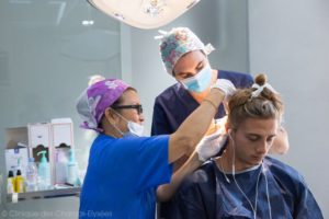implantation de cheveux à l'arrière du crâne d'un homme